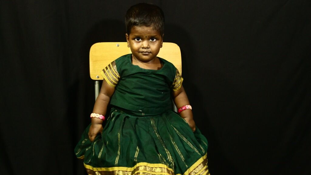 Help a special needs child get access to nutrition